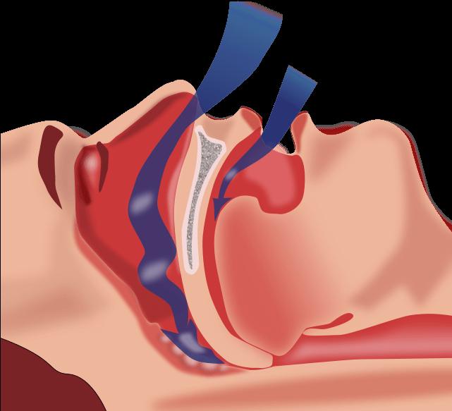 У женщин с апноэ сна рак диагностируется
